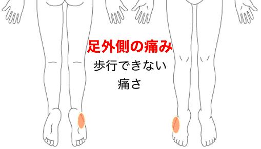 足外側の痛み 歩行できない痛さ